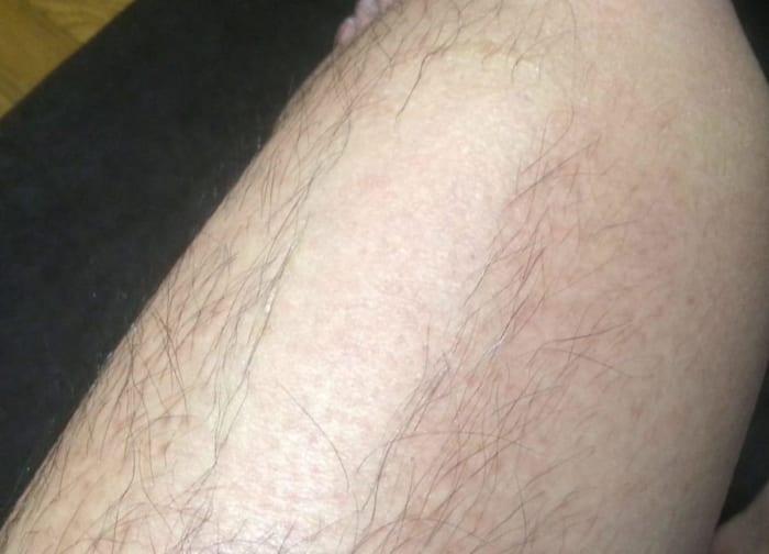 ブラジリアンワックスで太ももの毛を脱毛