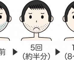 ヒゲ脱毛の回数